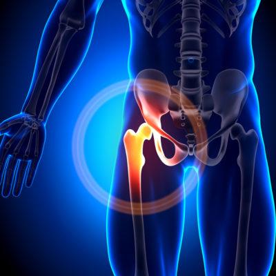 TSAGO Seeking Patients with Chronic Hip Pain for Hip Osteoarthritis Study