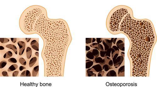 illustration of healthy bone versus osteoporosis bone
